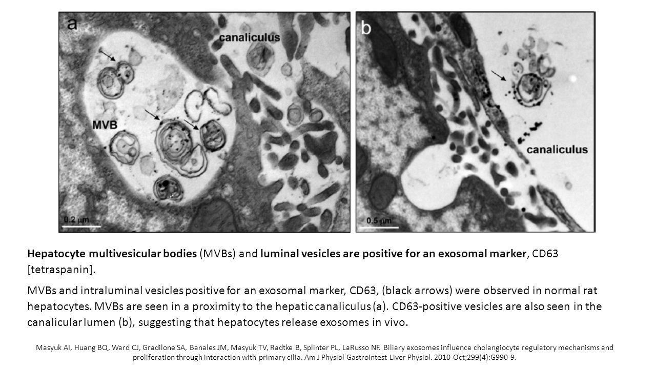 Hepatocyte multivesicular bodies (MVBs) and luminal vesicles are positive for an exosomal marker, CD63 [tetraspanin].